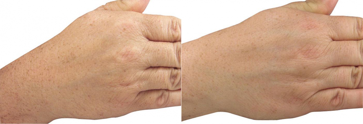 Before and after of patient's hands after anti-age spot treatment in Rochester, NY